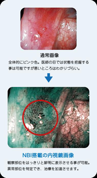 が ん 咽頭